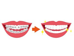 歯が動くメカニズム