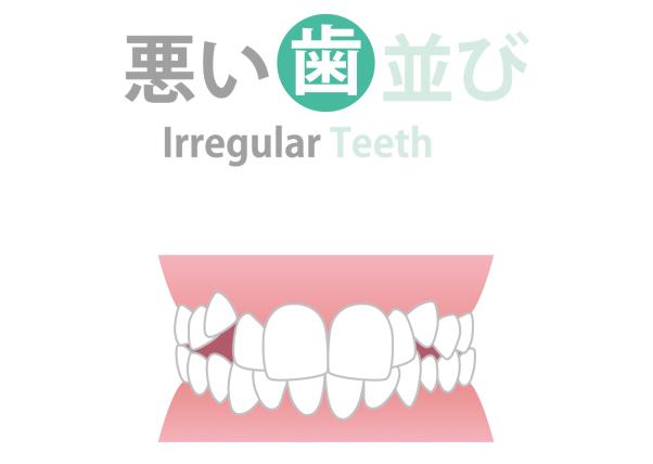 いろいろな歯並びとその治療法