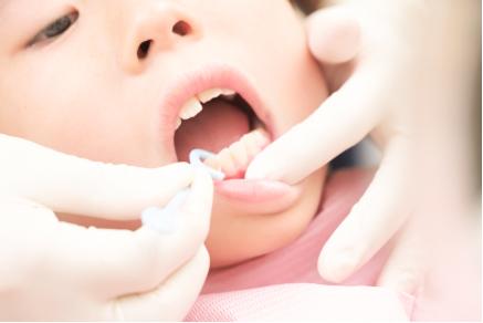 虫歯予防は歯医者さんからの情報を!