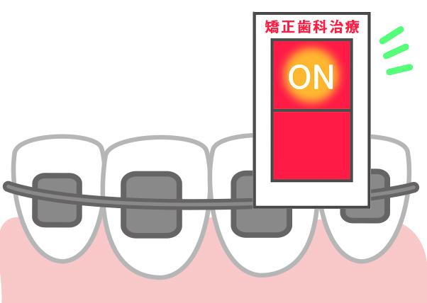 小児矯正歯科治療のきっかけ