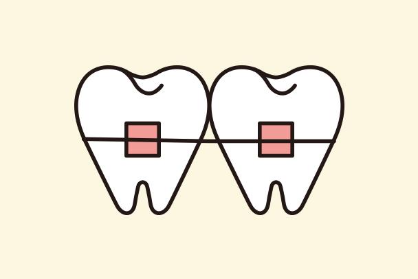 ワイヤー矯正歯科治療