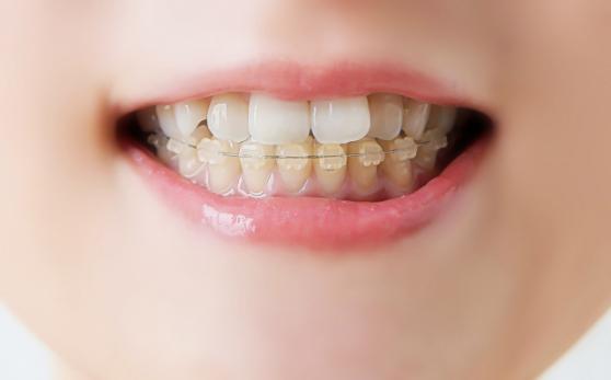 乳歯列期・混合歯列期の矯正歯科治療