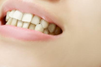 矯正歯科治療をおススメする症状